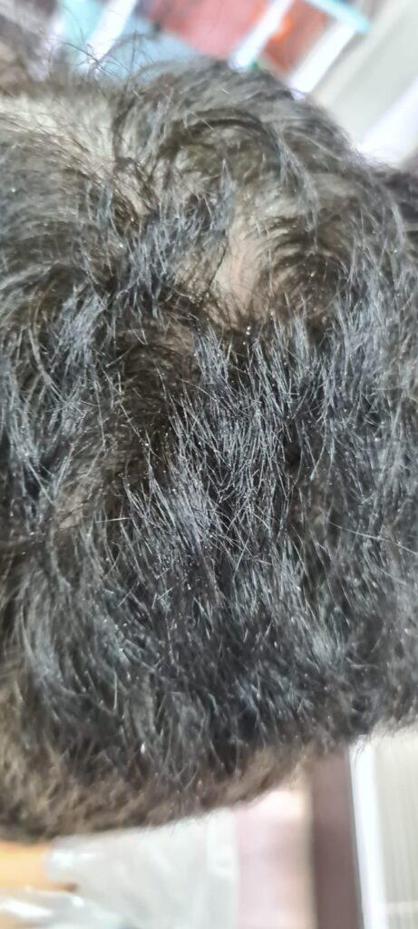 parrucchiere - prima dell'intervento